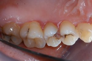 caries, tooth decay, cavities: floss could have prevented this
