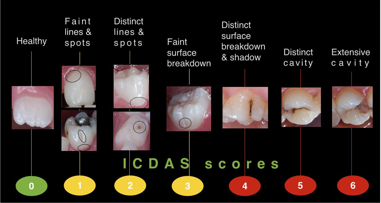 Dental Caries: Breaking the Cycle - TeethFirst